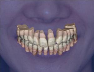 実際の患者様の写真に現在の歯の様子を合成。