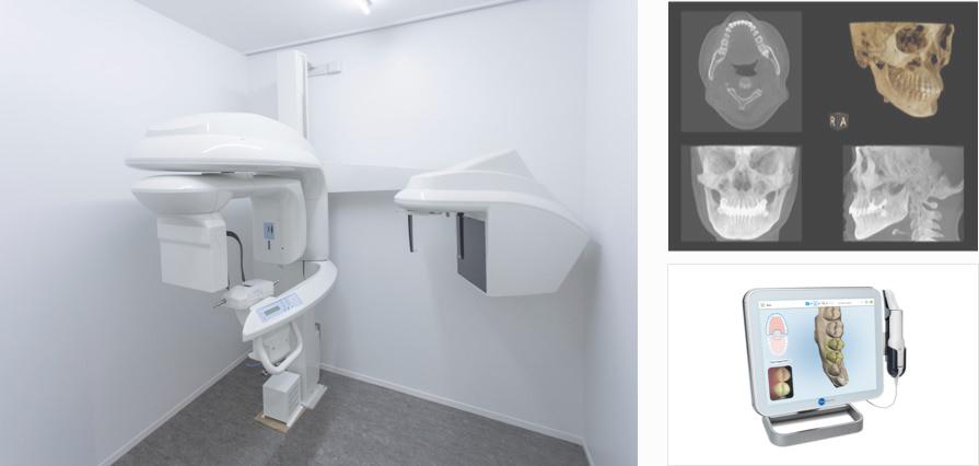 CTスキャンを使った検査イメージ