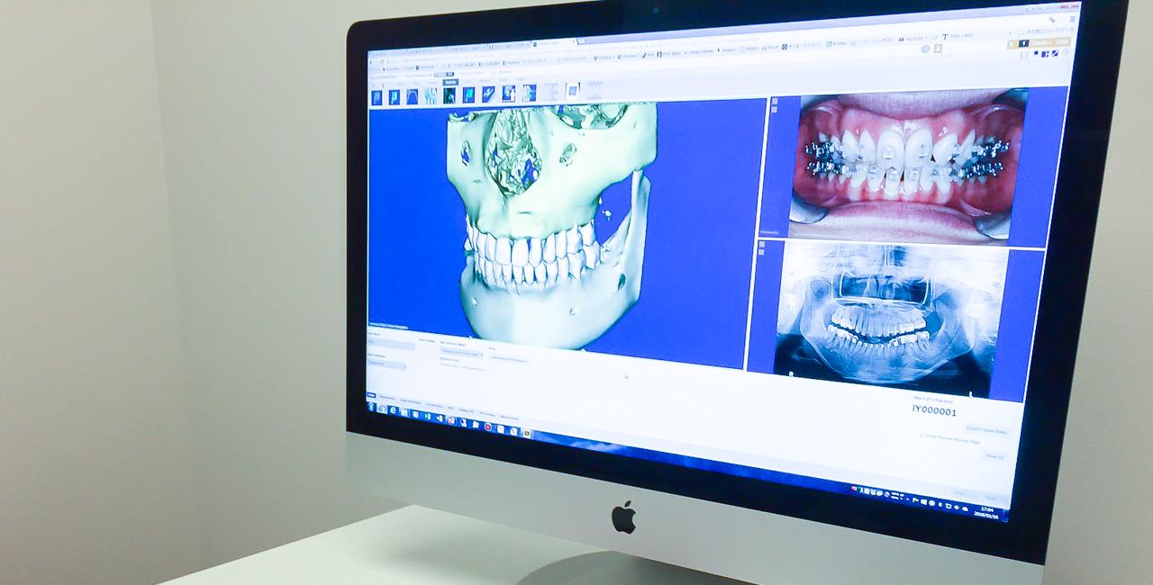 3Dデジタル矯正とは? イメージ2