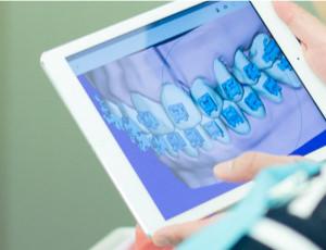 タブレットやパソコンの画面で、矯正治療前と後の動きを実際に見ることができます。