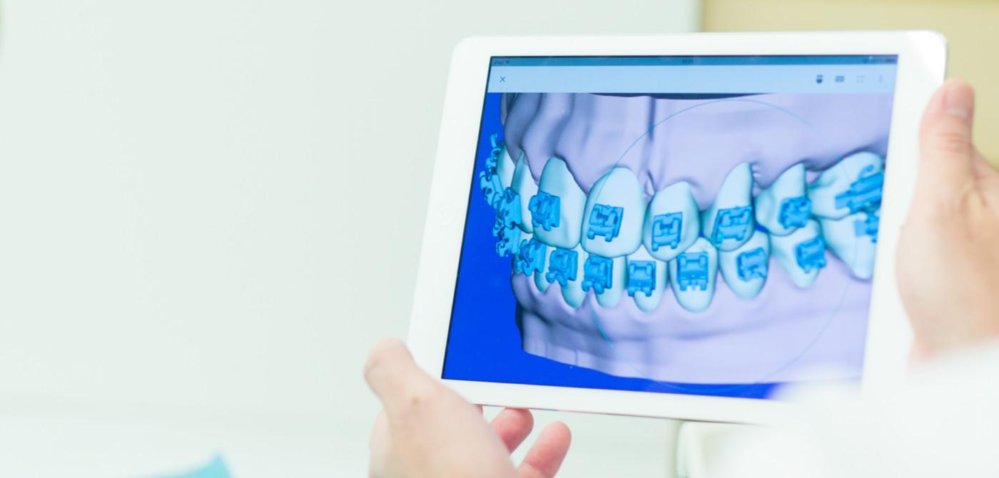 MOTO矯正歯科の特徴 イメージ1