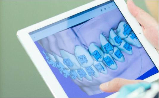 MOTO矯正歯科の特徴